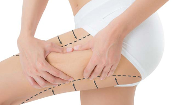 bacak liposuction