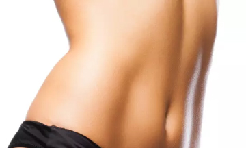 bel liposuction